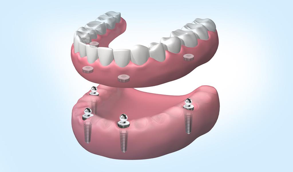 implantes dentales en Sant Cugat