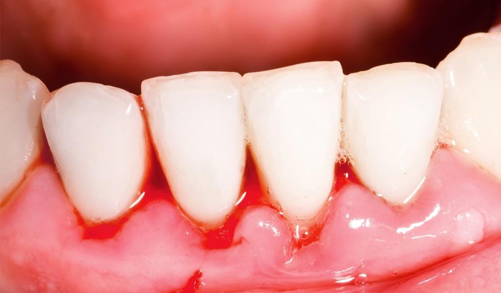 urgencias dentales en Sant Cugat del Vallès
