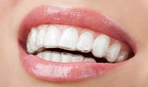ortodoncia invisible en Sant Cugat