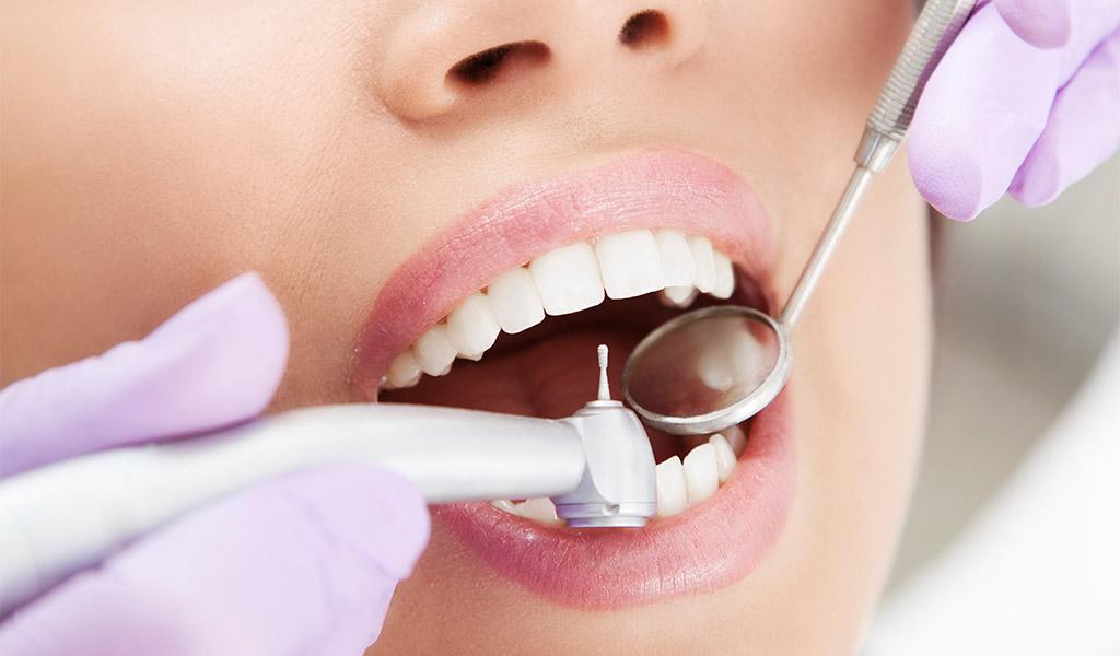 higiene denta en Sant Cugat del Vallès