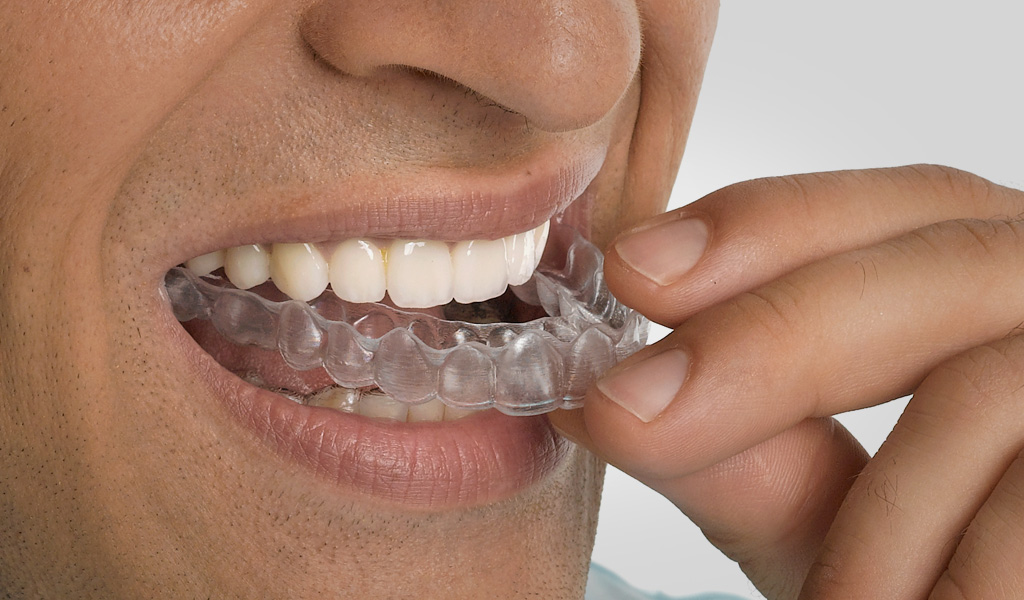 ortodoncia en Sant Cugat