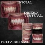 diseño de sonrisa virtual