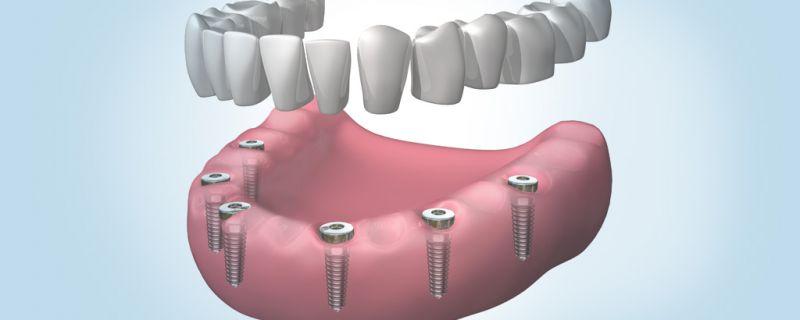 Implantes dentales en Sant Cugat de última generación