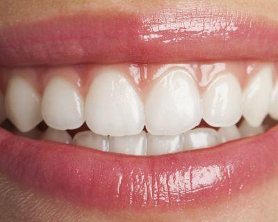 Consejos para el cuidado de los dientes