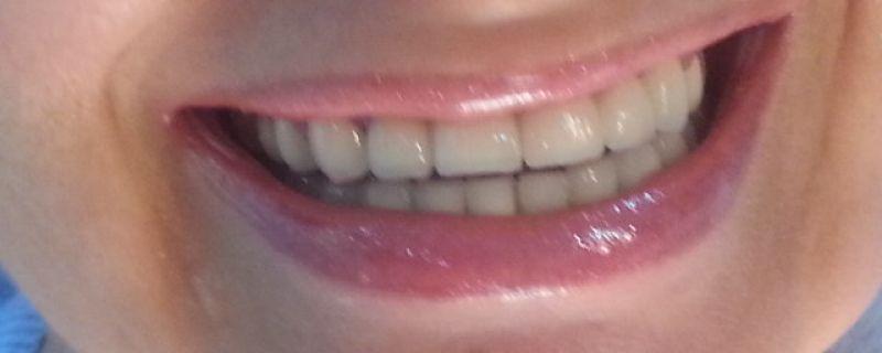 Miedo al dentista, Implantes y estética en Sant Cugat
