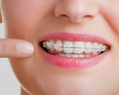 Ortodoncia en Sant Cugat de alto nivel